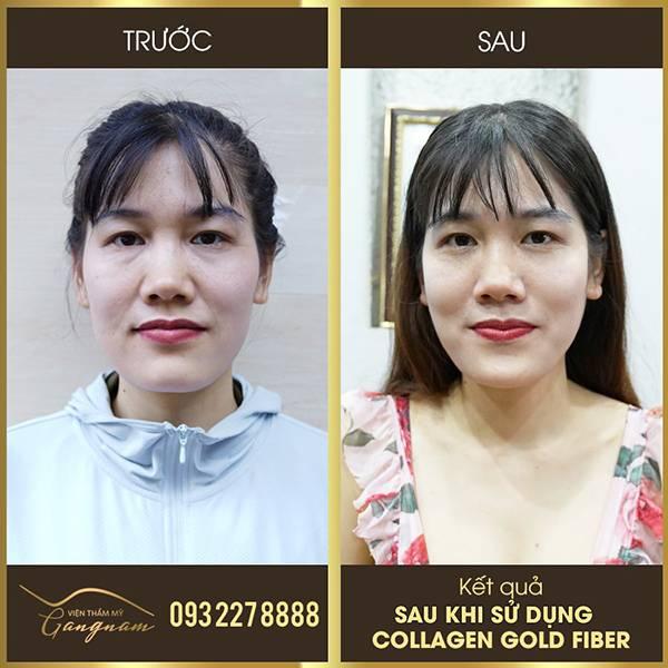 Nếp nhăn gần như biến mất hoàn toàn trên gương mặt của chị Hương sau căng chỉ Collagen Gold Fiber