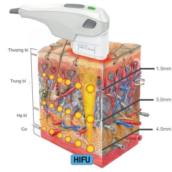 Căng da bằng công nghệ Hifu