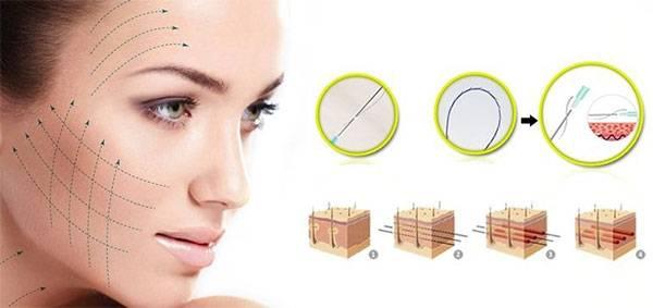 Căng da mặt bằng chỉ là công nghệ trẻ hoá đang được ưa chuộng nhất hiện nay