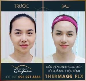Gương mặt cân đối, hài hoà, bề mặt da láng mịn của Đinh Ngọc Diệp sau liệu trình trẻ hóa da Thermage FLX