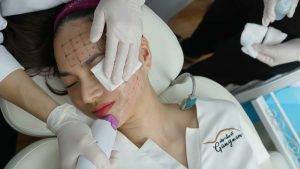 Đinh Ngọc Diệp trong quá trình điều trị trẻ hóa da với Thermage FLX tại Mega Gangnam