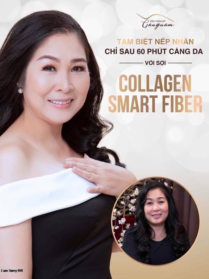 giau-chong-di-cang-da-mat-bang-chi-collagen (1)