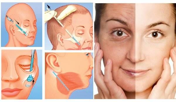 Phẫu thuật căng da tồn tại nhiều rủi ro khó lường