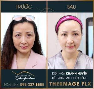 Diễn viên Khánh Huyễn vô cùng hài lòng với làn da sáng bóng, căng mịn sau 1 liệu trình Thermage FLX của viện thẩm mỹ Mega Gangnam
