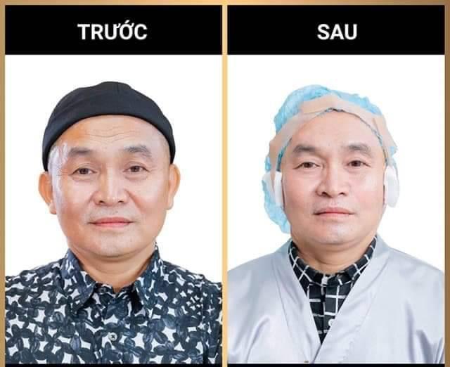 Danh hài Xuân Hinh trước - sau khi thực hiện căng da bằng chỉ Collagen - Vàng (Collagen Gold Fiber)