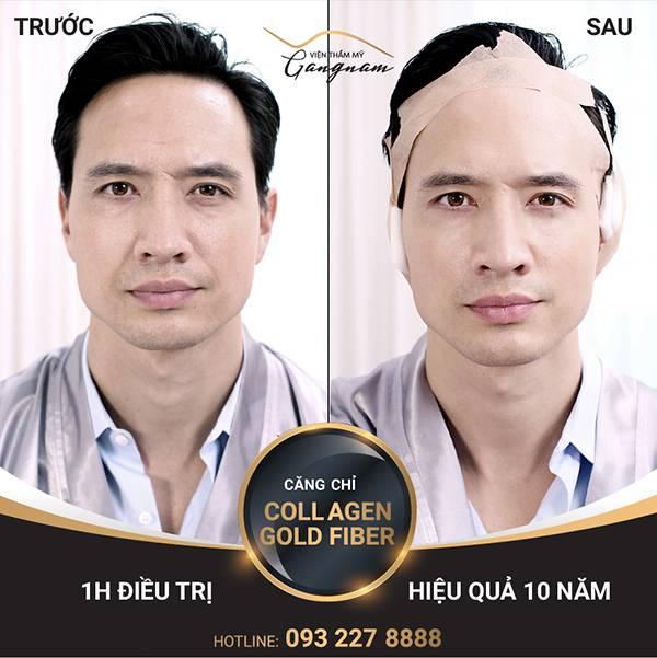 Diễn viên Kim Lý thực hiện cách xóa nếp nhăn vùng mắt bằng căng chỉ Collagen Gold Fiber
