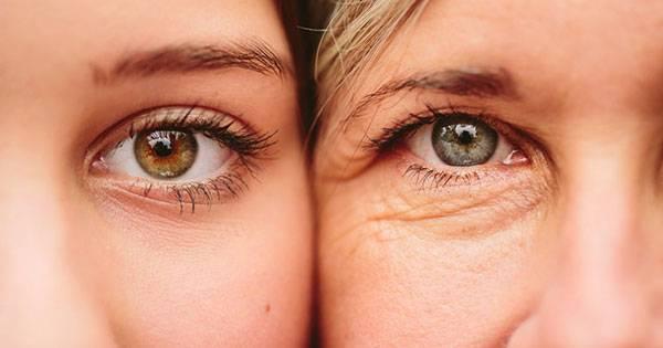 Tác động do tuổi tác theo thời gian là nguyên nhân khiến chúng ta bị nếp nhăn