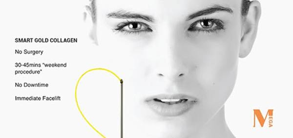 """Căng da bằng chỉ Collagen Gold Fiber - """"Siêu phẩm"""" của công nghệ trẻ hoá, xoá nhăn"""