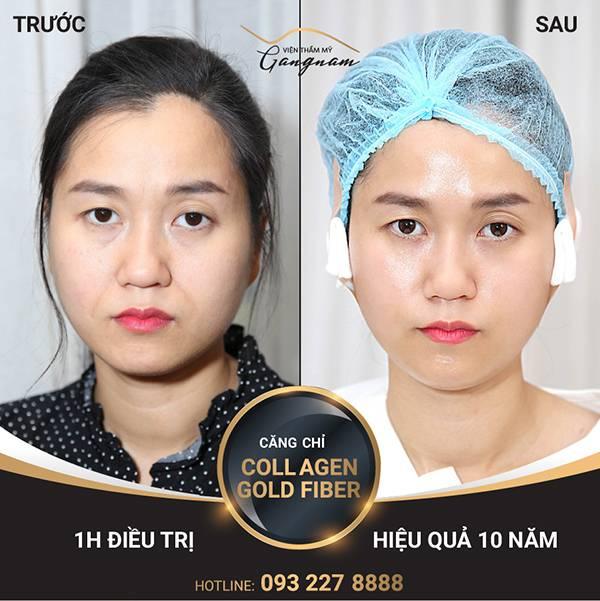 Giải pháp trẻ đẹp của Lâm Vỹ Dạ chính là căng chỉ Collagen Gold Fiber