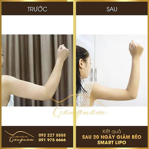 Giảm mỡ vai và bắp tay đơn giản chỉ sau 60 phút điều trị cùng tinh chất Smart Lipo