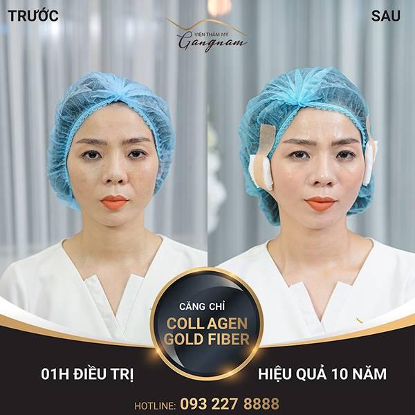 Ca sĩ Lệ Quyên sau liệu trình căng da mặt bằng chỉ Collagen Gold Fiber