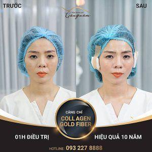 Làn da của Nữ hoàng Bolero cải thiện rõ rệt sau 1 giờ căng chỉ bằng công nghệ trẻ hóa da mới nhất hiện nay - căng chỉ Collagen Gold Fiber