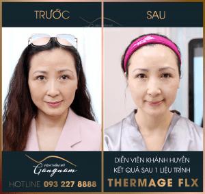 Làn da căng mịn của Khánh Huyền sau 1 tiếng thực hiện Thermage FLX