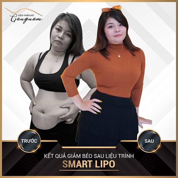 giảm mỡ bụng với máy chạy bộ không thành công, chị Ngọc Hải đã quyết định sử dụng công nghệ giảm béo Smart Lipo