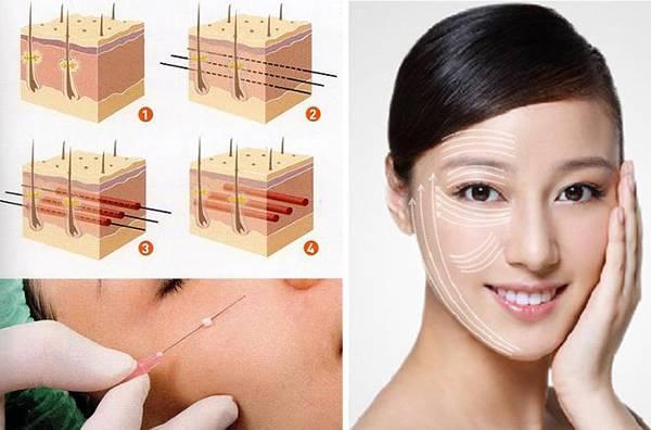 Mô hình sợi chỉ Collagen Gold Fiber với kết cấu dạng xoắn giúp bám dính & nâng đỡ tốt hơn