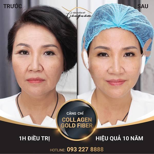 """NS Ngân Quỳnh cũng """"gột sạch"""" dấu hiệu lão hóa với chỉ lai Collagen Gold Fiber. Tham khảo trẻ hóa da mặt giá bao nhiêu tại đây"""