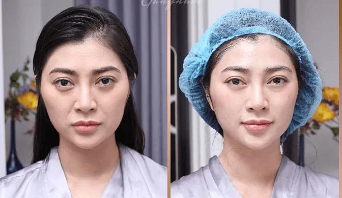 Sự thay đổi của diễn viên Thanh Trúc trước và sau khi điều trị bằng Thermage FLX