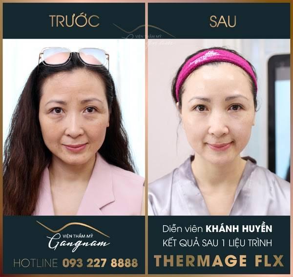Diễn viên Khánh Huyền với làn da căng mướt, láng mịn sau khi thực hiện liệu trình Thermage FLX