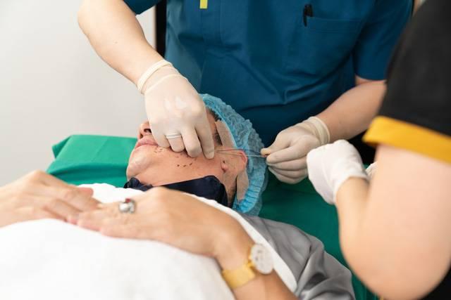 Sợi chỉ Collagen Smart Fiber được đưa vào mặt bằng đầu vi kim đặc chế
