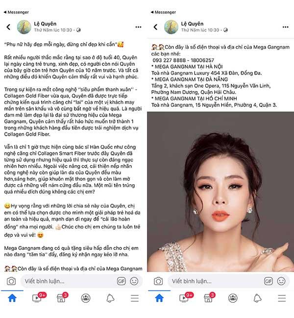Những dòng chia sẻ của ca sĩ Lệ Quyên về liệu trình căng da bằng chỉ Collagen Gold Fiber sau khi thực hiện tại Mega Gangnam