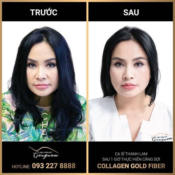 Diva Thanh Lam vô cùng hài lòng với hiệu quả ngay sau 1 giờ căng da với sợi Collagen - vàng