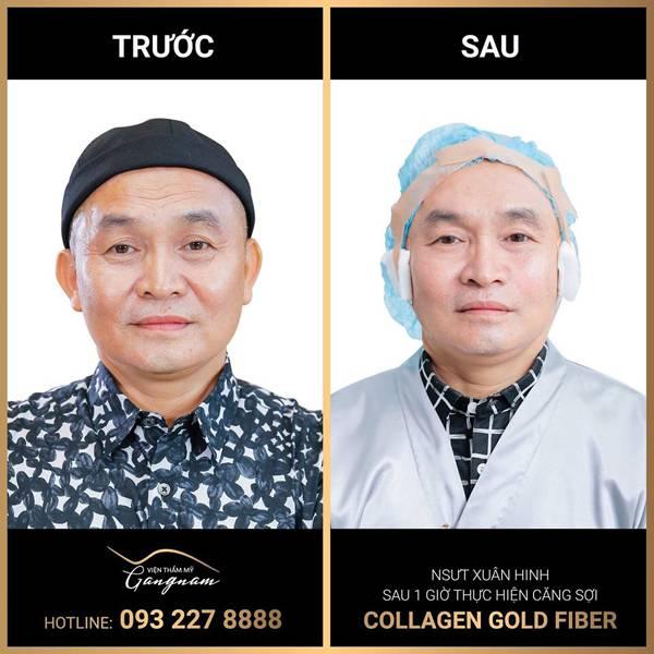NSƯT Xuân Hinh sau 1 giờ căng sợi Collagen Gold Fiber