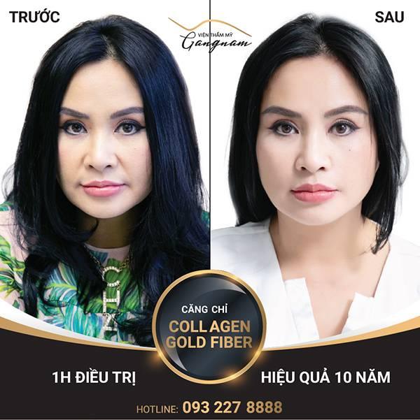 Diva Thanh Lam lựa chọn căng chỉ Collagen Gold Fiber tại Mega Gangnam