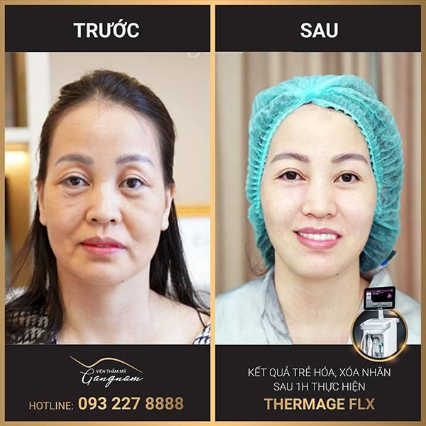 Làn da căng bóng cũng đôi mắt tràn đầy sức sống sau liệu trình xóa nhăn toàn mặt với Thermage FLX của chị khách