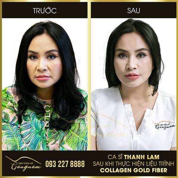 Diva Thanh Lam là một trong những khách hàng đầu tiên được trải nghiệm đỉnh cao mới trong trẻ hóa xóa nhăn - căng chỉ Collagen Gold Fiber