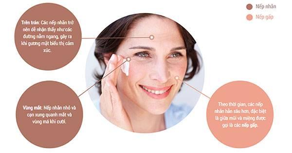 Nếp nhăn là biểu hiện của quá trình lão hoá da
