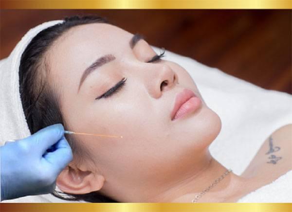 Trẻ hóa da bằng chỉ được nhiều khách hàng lựa chọn vì hiệu quả cao.