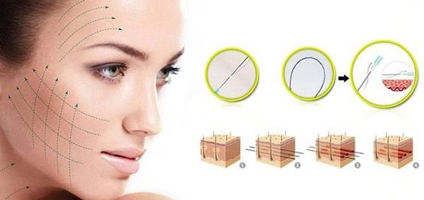 Công nghệ căng chỉ đang ngày càng được chị em tin tưởng lựa chọn nhờ hiệu quả nâng cơ rõ rệt, đồng thời cũng cải thiện bề mặt da