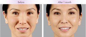 Kết quả cải thiện da sau 1 tháng nâng cơ trẻ hóa da Hifu