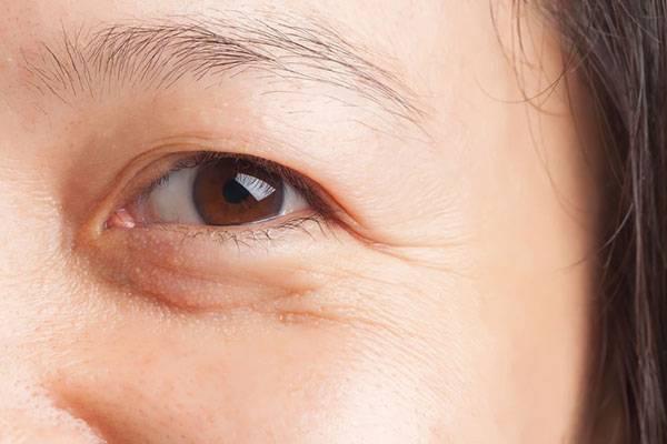 Nếp nhăn mắt là một trong những nguyên nhân chính khiến phụ nữ trông già trước tuổi