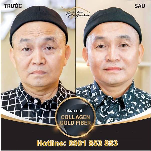 Nghệ sĩ Xuân Hinh trẻ hóa toàn mặt và xóa nhăn vùng mắt nhờ căng chỉ collagen vàng
