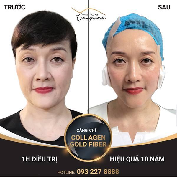 Khách hàng cải thiện nếp nhăn giữa 2 lông mày và trẻ hóa toàn mặt sau căng chỉ Collagen Gold Fiber.