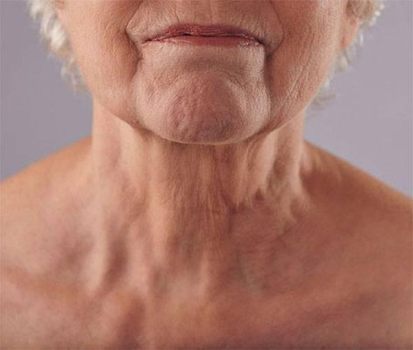 Nếp nhăn ở cổ ở người lớn tuổi