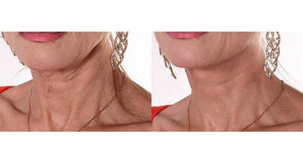 Căng chỉ Collagen Gold Fiber-trẻ hóa, xoá nhăn chưa bao giờ dễ dàng đến thếCăng chỉ Collagen Gold Fiber-xoá nếp nhăn chưa bao giờ dễ dàng đến thế