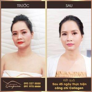 DV Minh Nguyệt trẻ ra gần chục tuổi sau 45 ngày căng da mặt bằng liệu trình Căng chỉ Collagen Smart Fiber