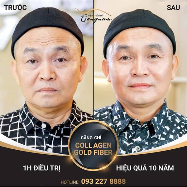 Hình ảnh thực tế danh hài Xuân Hinh sau khi xóa nếp nhăn trên mặt bằng căng chỉ collagen - vàng tại Mega Gangnam