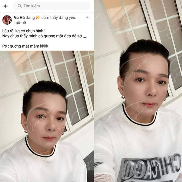 Ca sĩ Vũ Hà trở lại tuổi 20 sau khi căng chỉ Collagen Gold Fiber tại Mega Gangnam