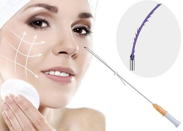 Căng da mặt không phẫu thuật bằng chỉ sinh học PDO