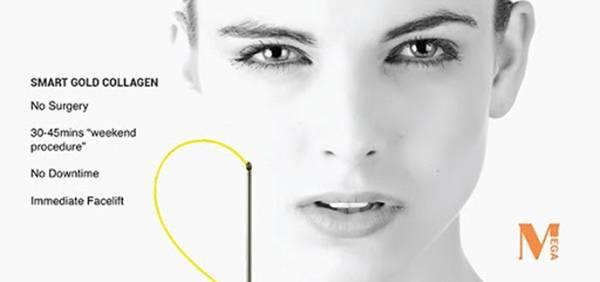 Công nghệ căng da mặt không phẫu thuật bằng sợi Collagen Vàng - Collagen Gold Fiber