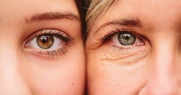Nếp nhăn mắt khiến khuôn mặt trông già nua hơn tuổi thật