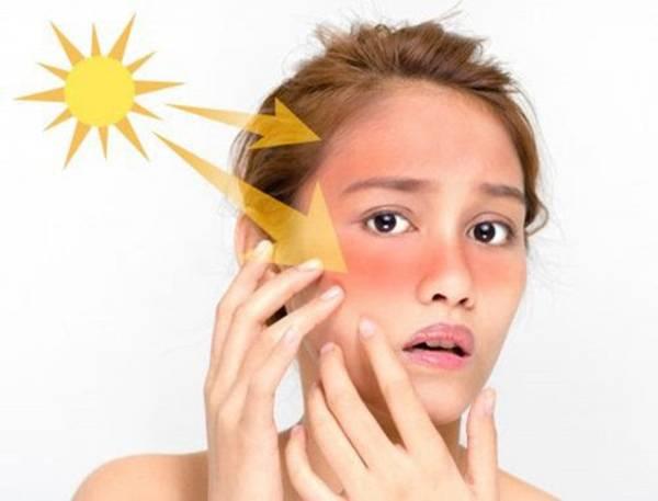 Không bảo vệ da cũng là tác nhân gây nên lão hoá sớm và xuất hiện rãnh nhăn