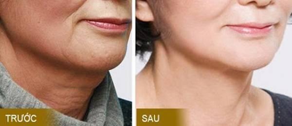 Kết quả thực hiện căng da cổ bằng sợi Collagen Gold Fiber