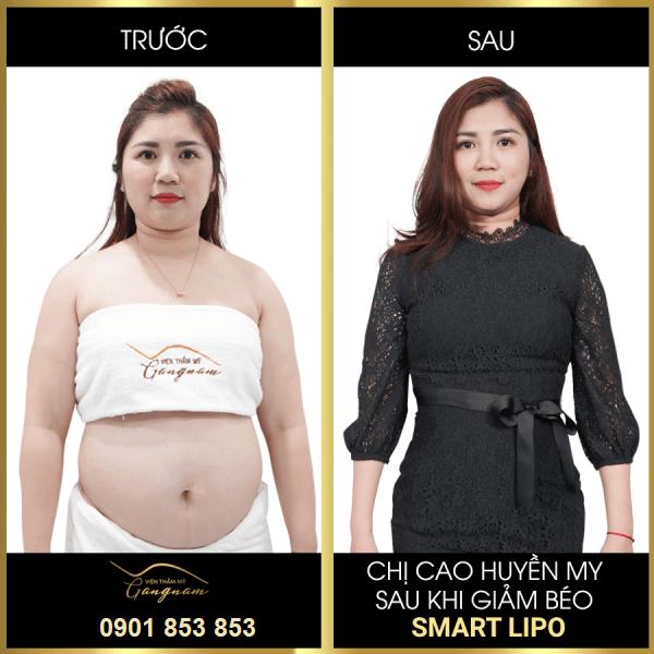Chi Huyền My giảm béo Smart Lipo