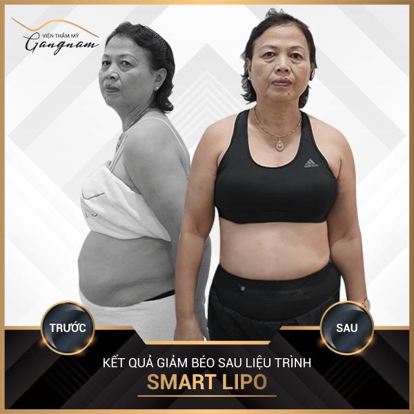 Sau 1 tháng, cô Dung đã giảm được 7kg và giảm được tổng 30cm mỡ thừa vòng bụng
