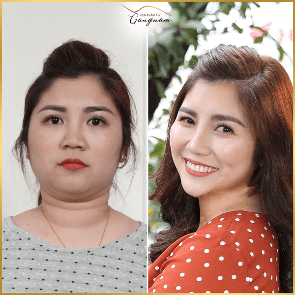 Nữ doanh nhân Trang Cet lột xác nhan sắc sau khi thực hiện liệu trình giảm béo mặt Smart Lipo