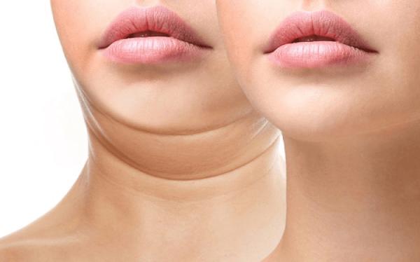 Vùng mỡ nọng cằm khiến gương mặt thiếu tươi tắn cũng như dễ dẫn đến một số bệnh lý không tốt.
